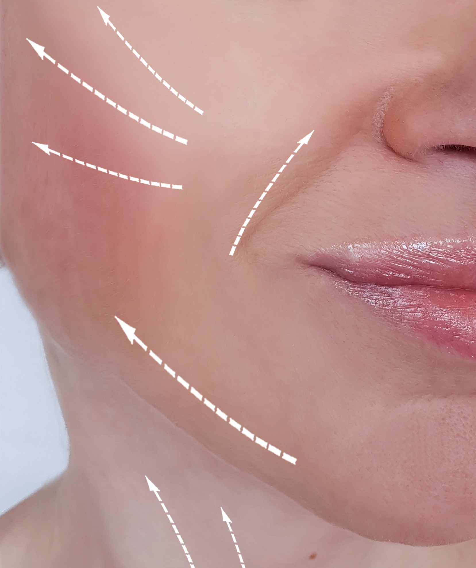 After-Facial Contouring