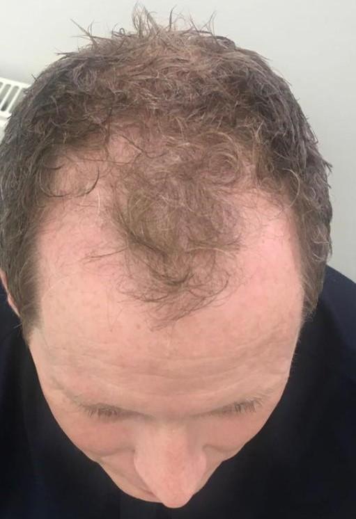 Before-Haarwachstumslaser