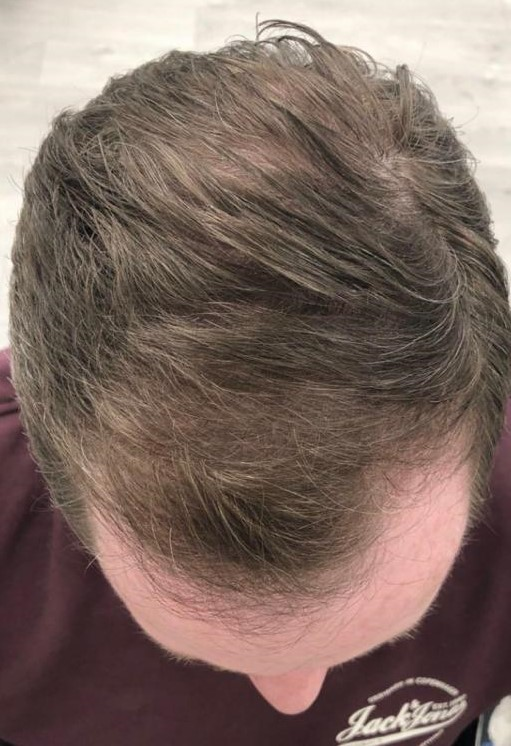 After-Haarwachstumslaser