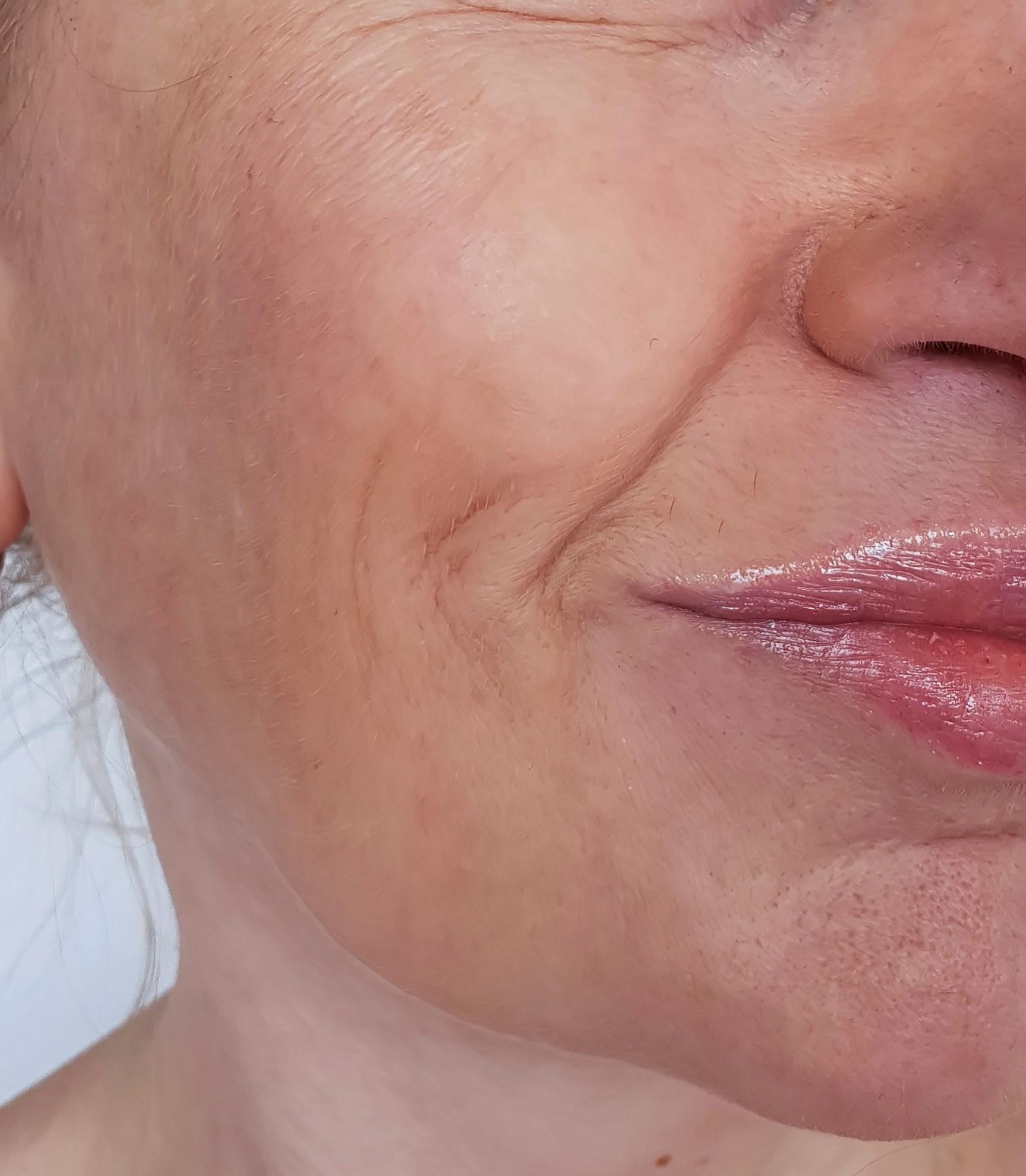 Before-Facial Contouring