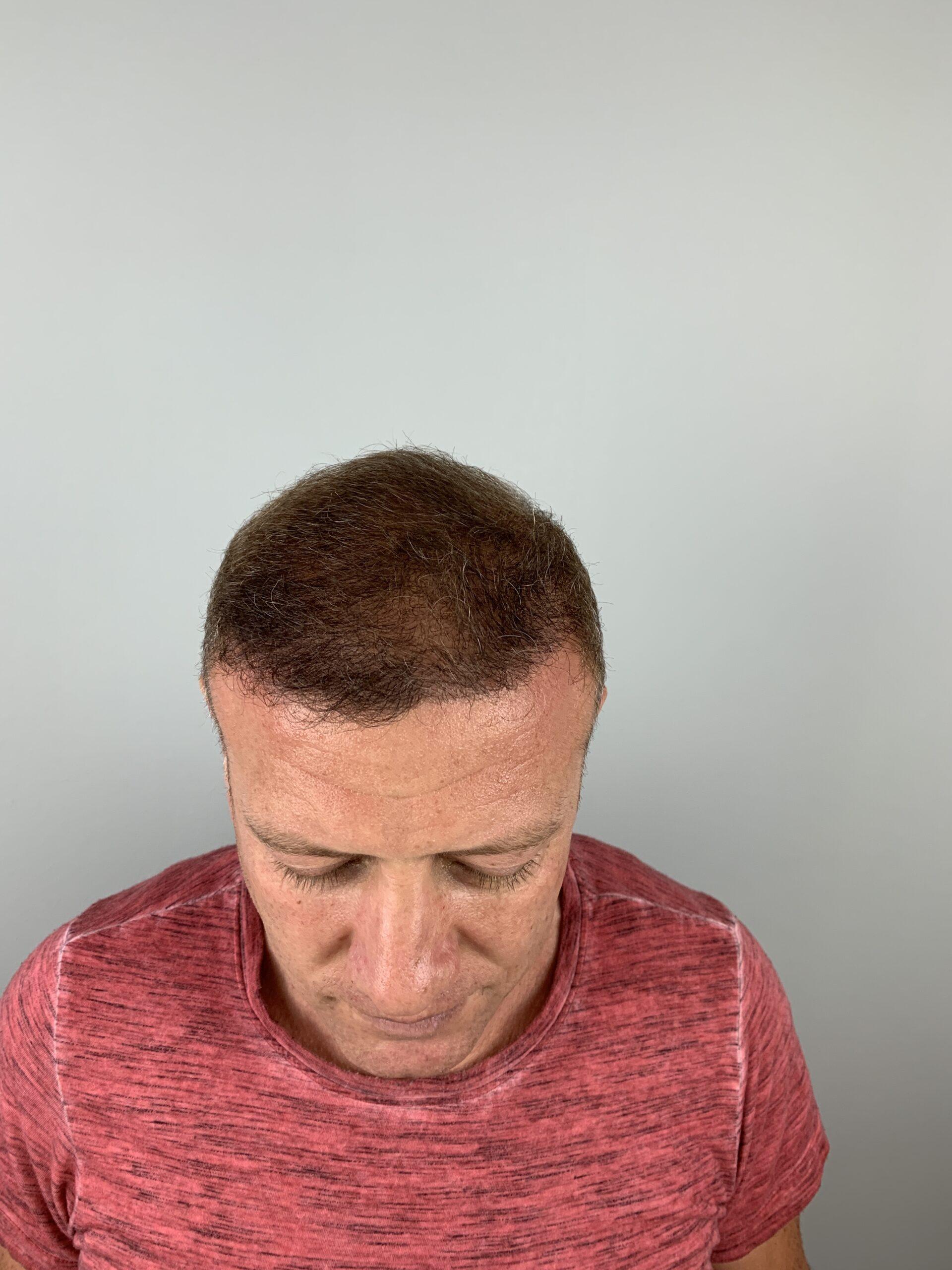 After-Haartransplantation