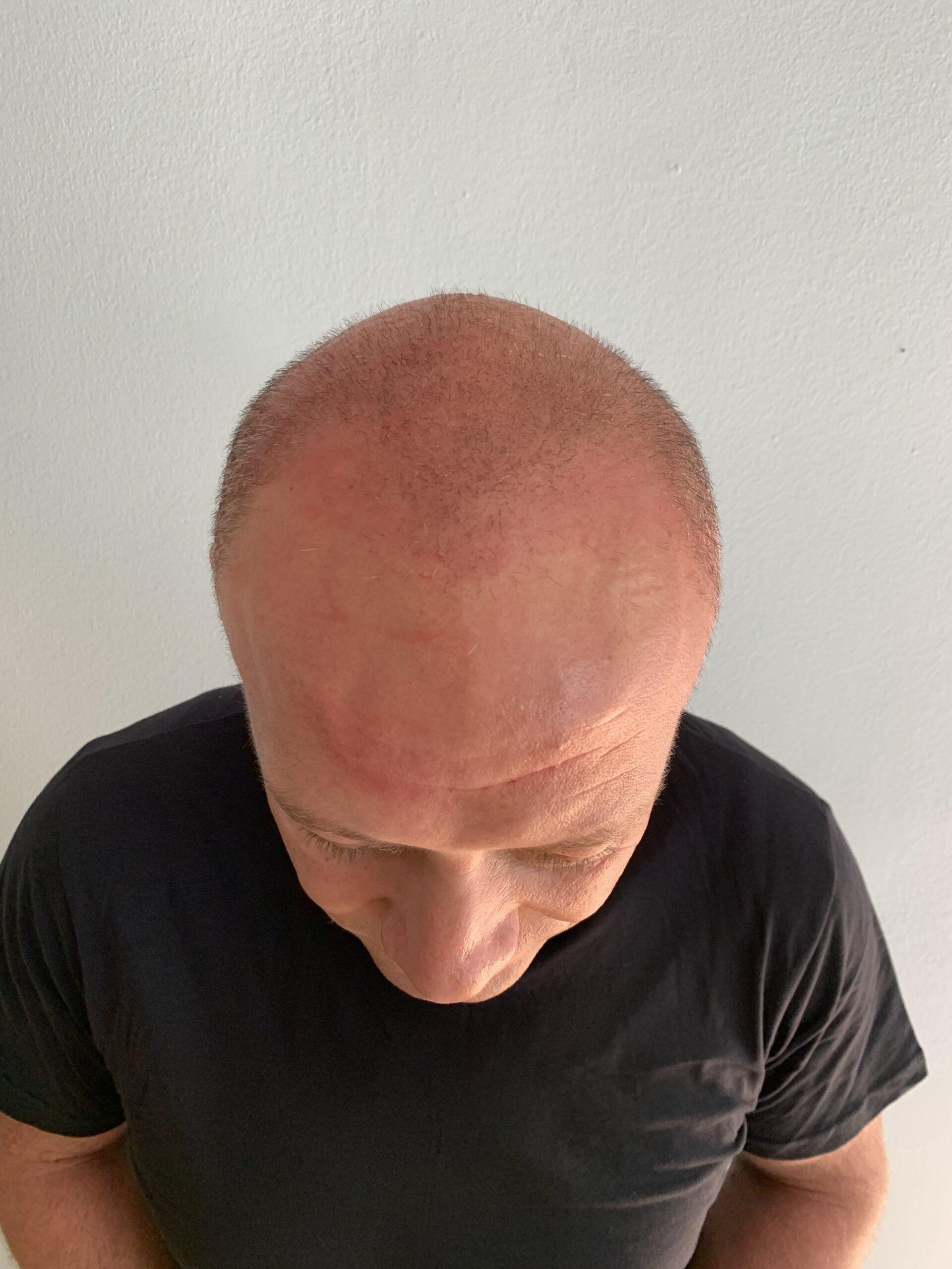Before-Haartransplantation